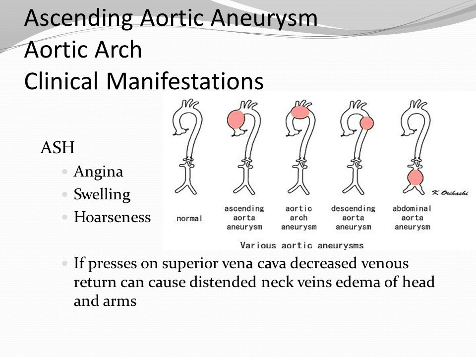 Ascending Aortic Aneurysm Aortic Arch Clinical Manifestations