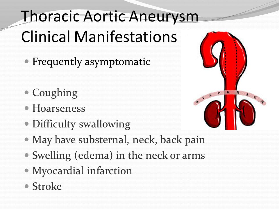 Thoracic Aortic Aneurysm Clinical Manifestations
