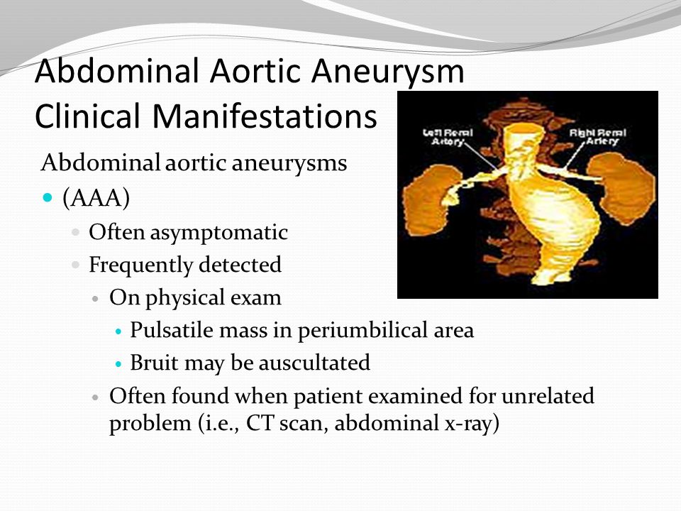 Abdominal Aortic Aneurysm Clinical Manifestations