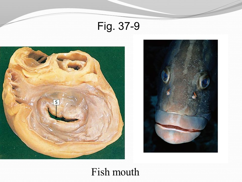 Fig. 37-9 Fish mouth
