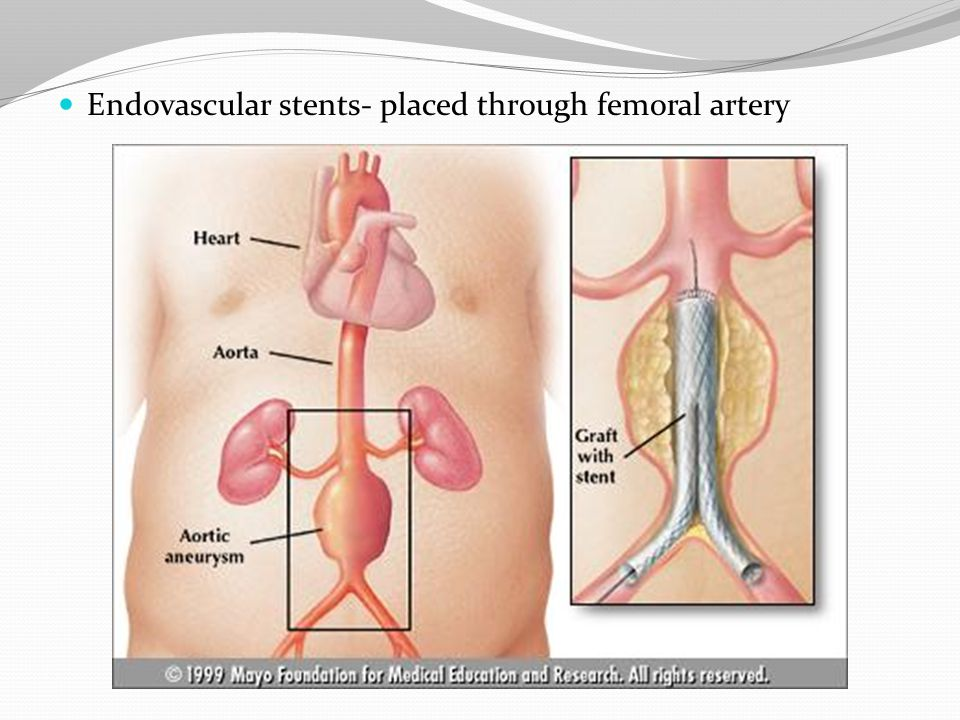 Endovascular stents- placed through femoral artery