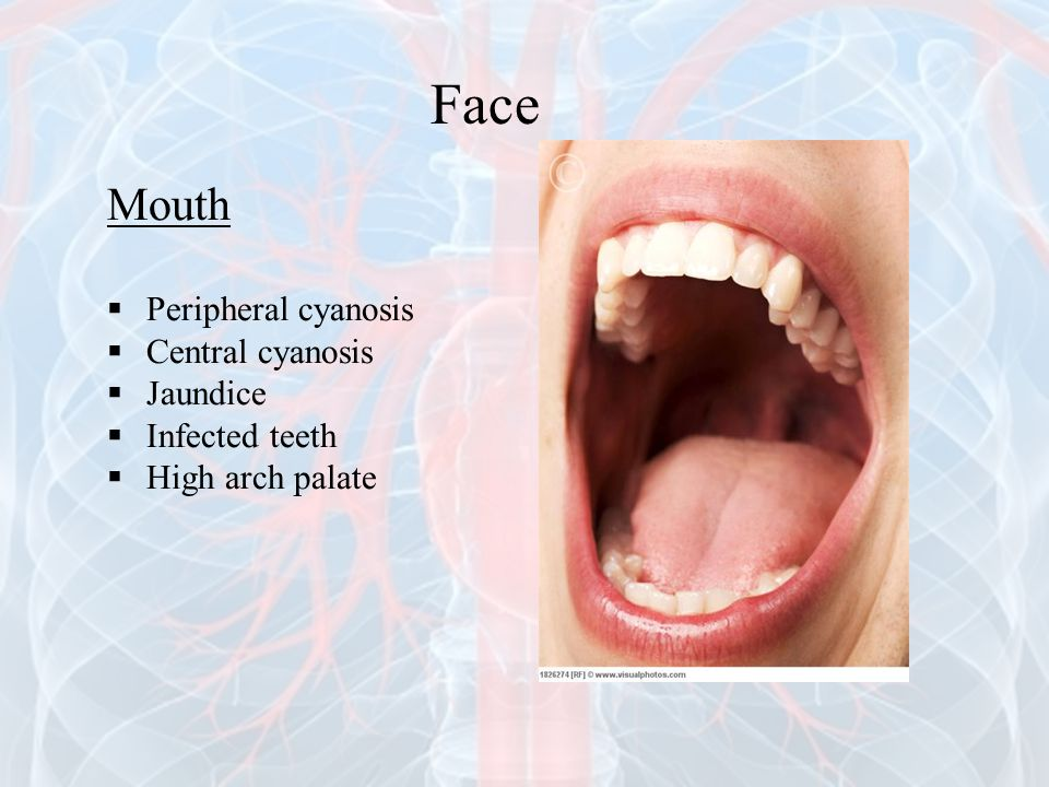 Face Mouth Peripheral cyanosis Central cyanosis Jaundice