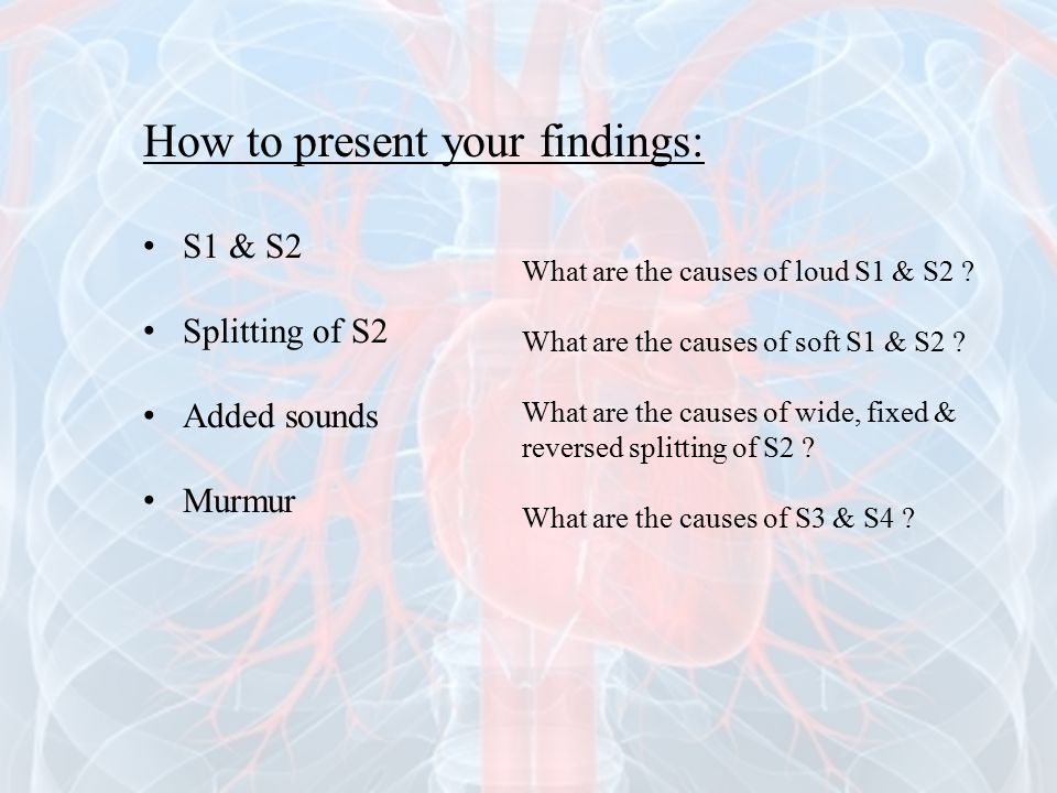 How to present your findings: