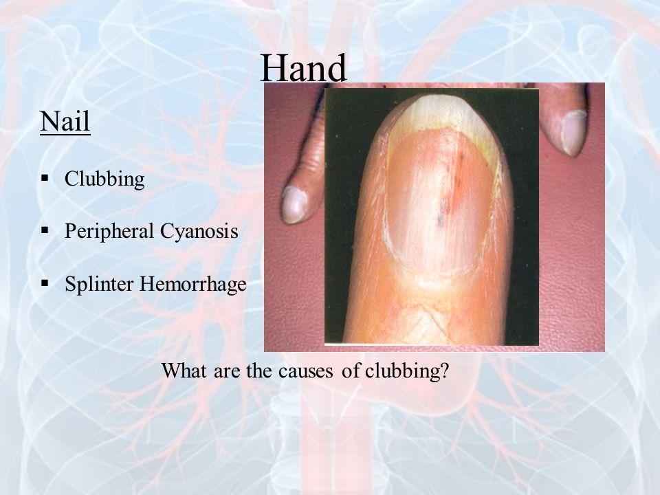 Hand Nail Clubbing Peripheral Cyanosis Splinter Hemorrhage