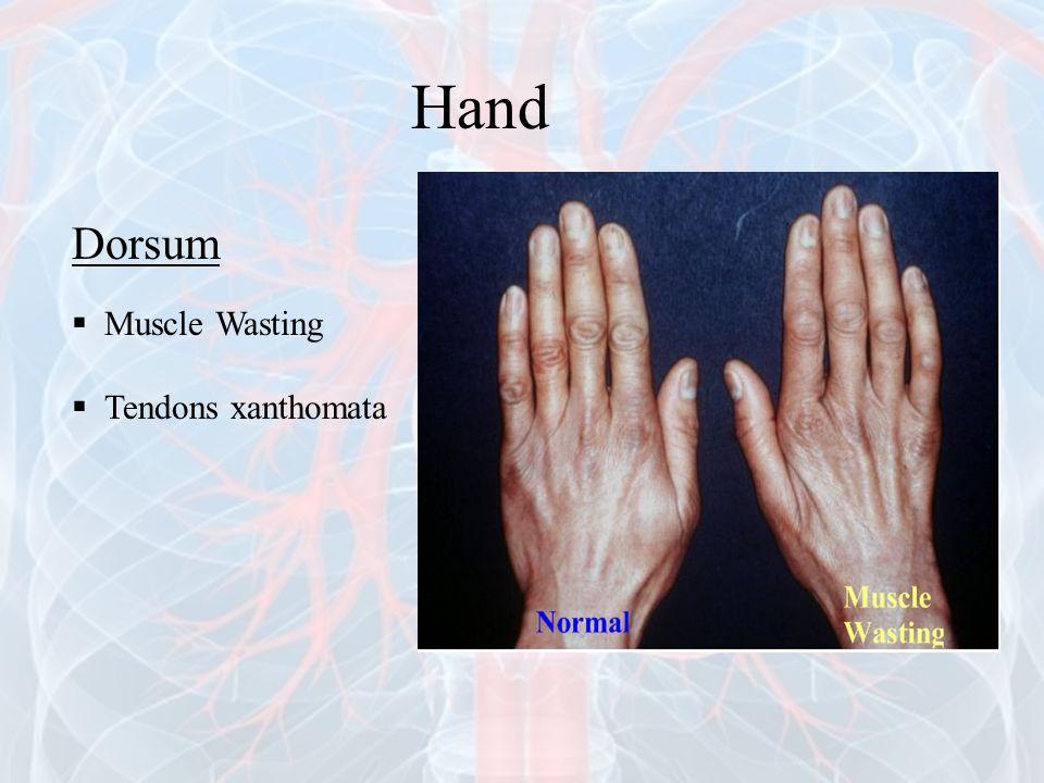 Hand Dorsum Muscle Wasting Tendons xanthomata