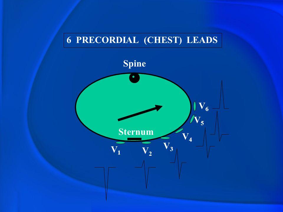 6 PRECORDIAL (CHEST) LEADS