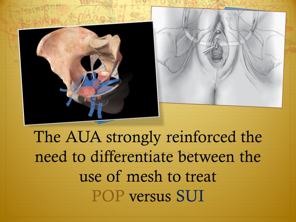 The AUA strongly reinforced the need to differentiate between the use of mesh to treat POP versus SUI