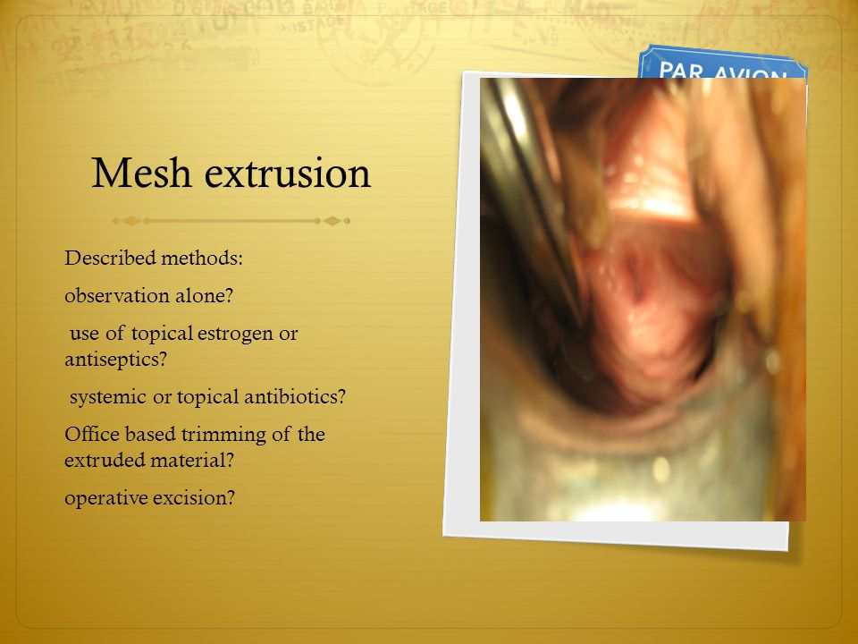 Mesh extrusion Described methods: observation alone