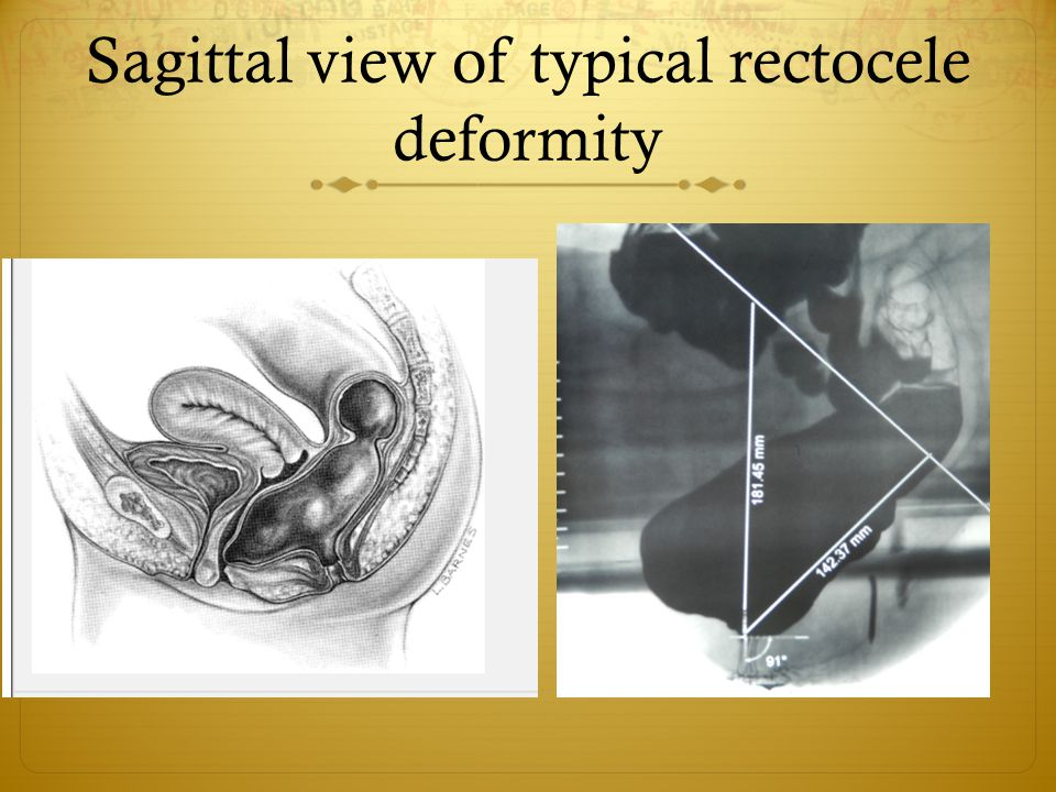 Sagittal view of typical rectocele deformity