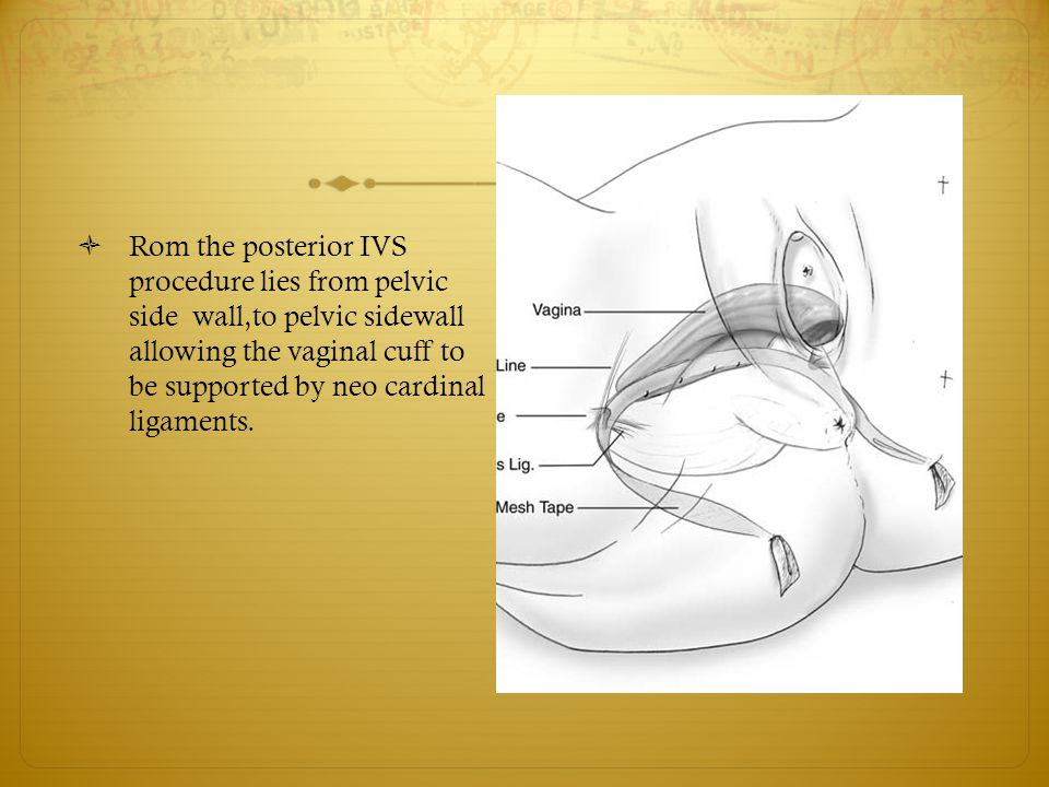 Rom the posterior IVS procedure lies from pelvic side wall,to pelvic sidewall allowing the vaginal cuff to be supported by neo cardinal ligaments.