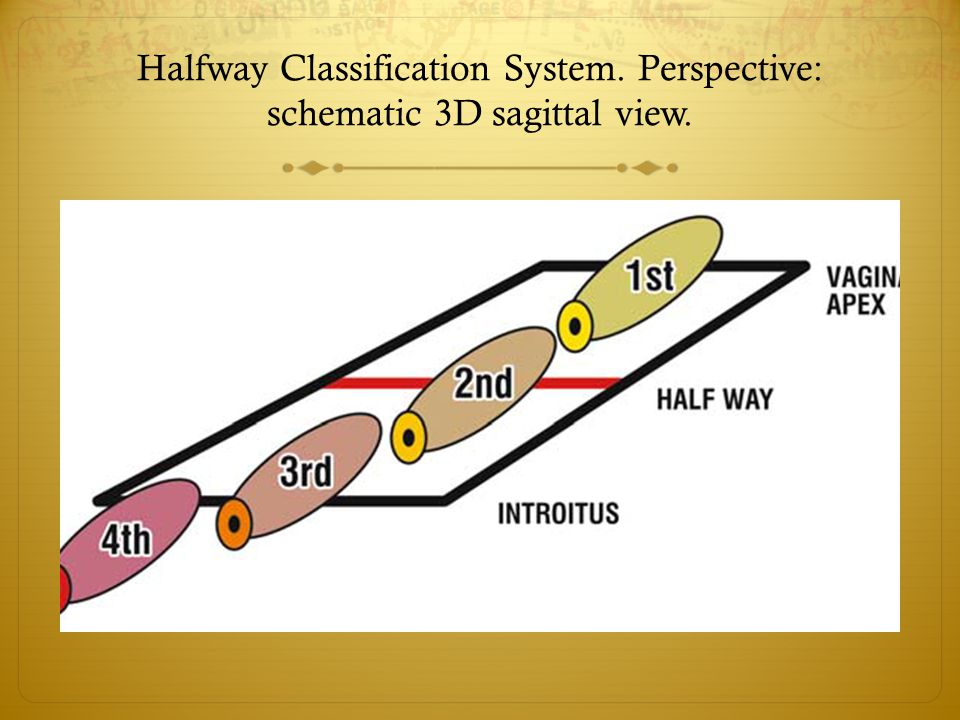 Halfway Classification System. Perspective: schematic 3D sagittal view.