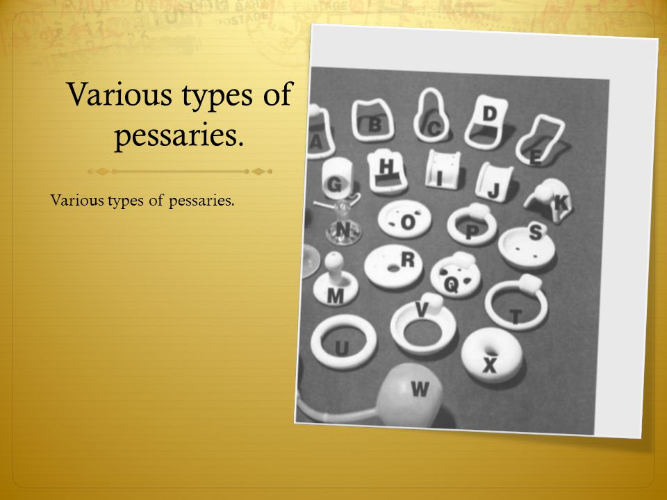 Various types of pessaries.