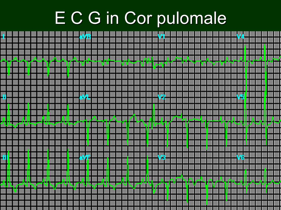 E C G in Cor pulomale