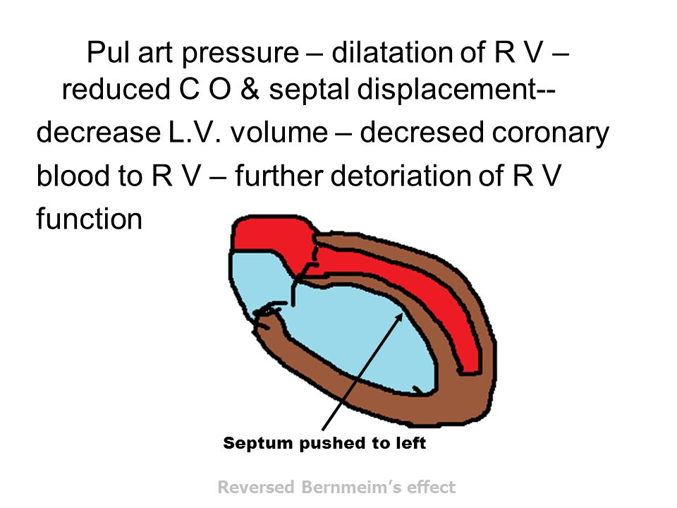 decrease L.V. volume – decresed coronary