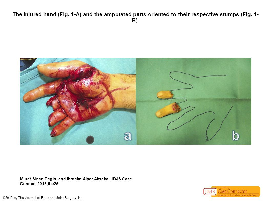 The injured hand (Fig. 1-A) and the amputated parts oriented to their respective stumps (Fig. 1-B).
