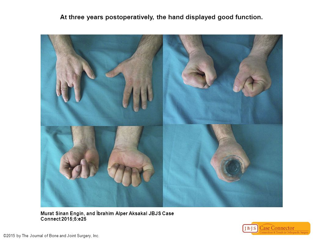 At three years postoperatively, the hand displayed good function.
