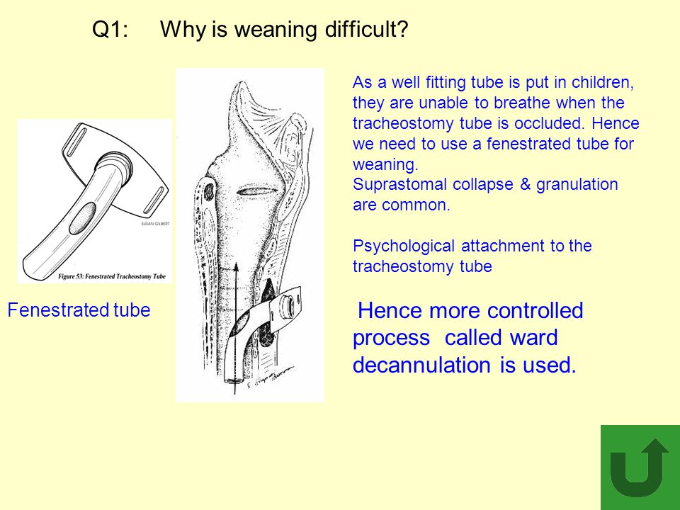 Q1: Why is weaning difficult