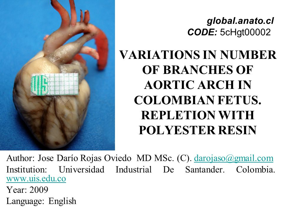 global.anato.cl CODE: 5cHgt00002 VARIATIONS IN NUMBER OF BRANCHES OF AORTIC ARCH IN COLOMBIAN FETUS. REPLETION WITH POLYESTER RESIN