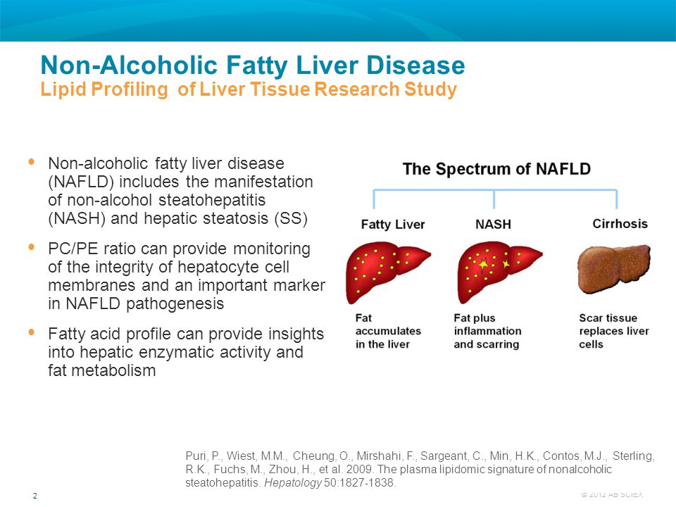 Non-Alcoholic Fatty Liver Disease Lipid Profiling of Liver Tissue Research Study