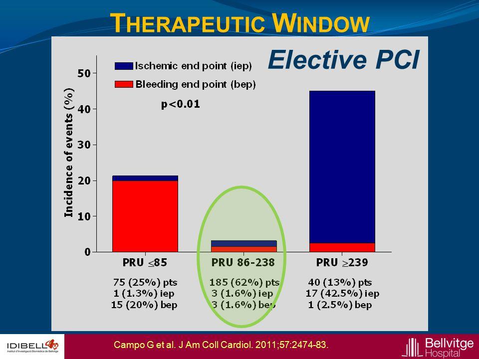 Therapeutic Window Elective PCI