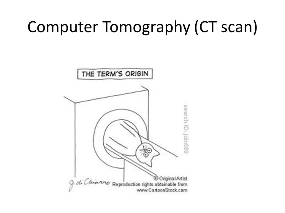 Computer Tomography (CT scan)