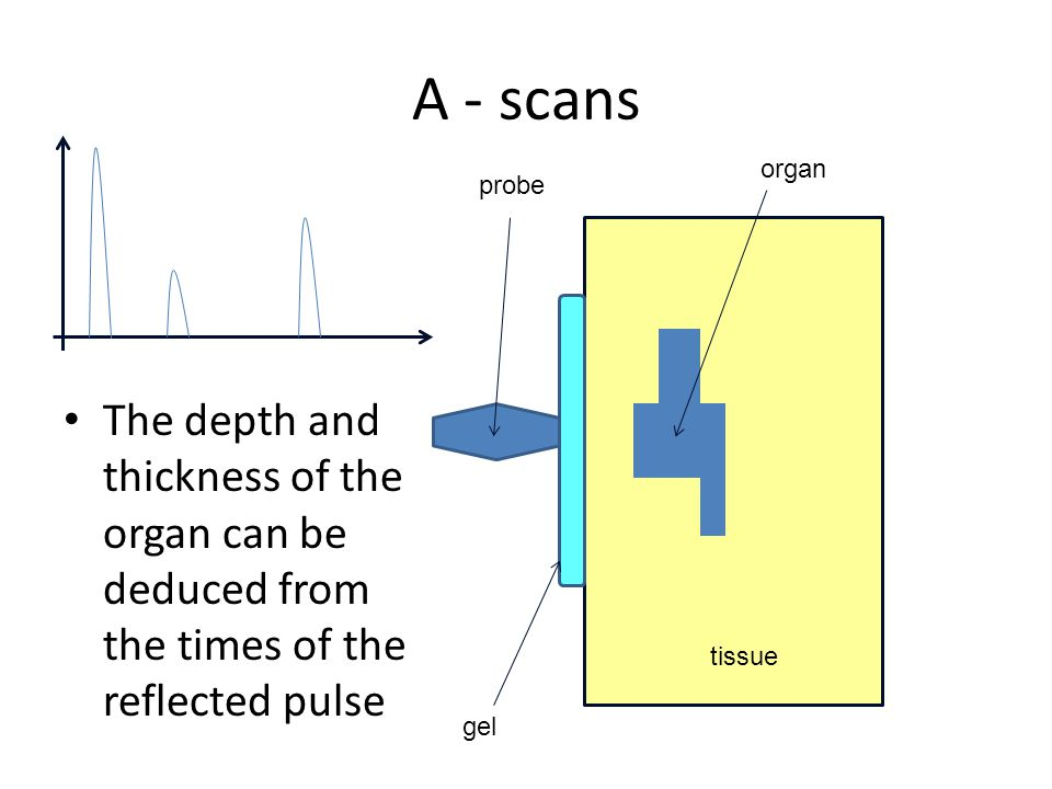 A - scans organ. probe. The depth and thickness of the organ can be deduced from the times of the reflected pulse.