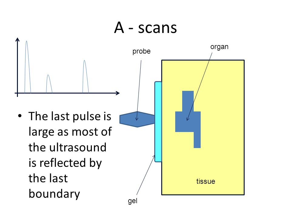 A - scans organ. probe. The last pulse is large as most of the ultrasound is reflected by the last boundary.