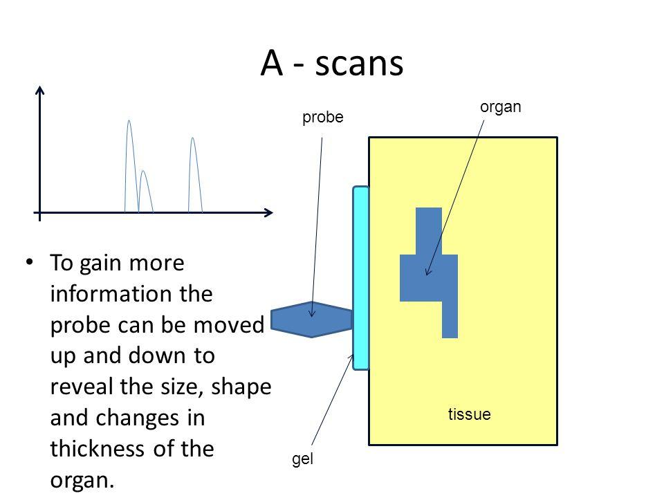 A - scans organ. probe.