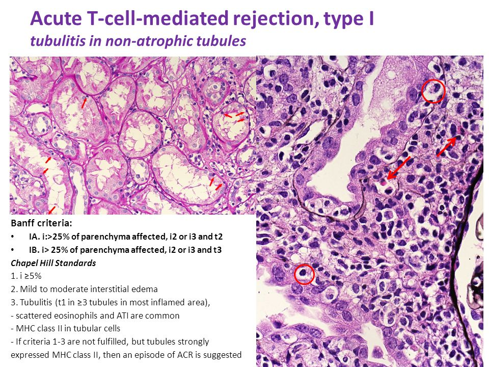 Acute T-cell-mediated rejection, type I tubulitis in non-atrophic tubules