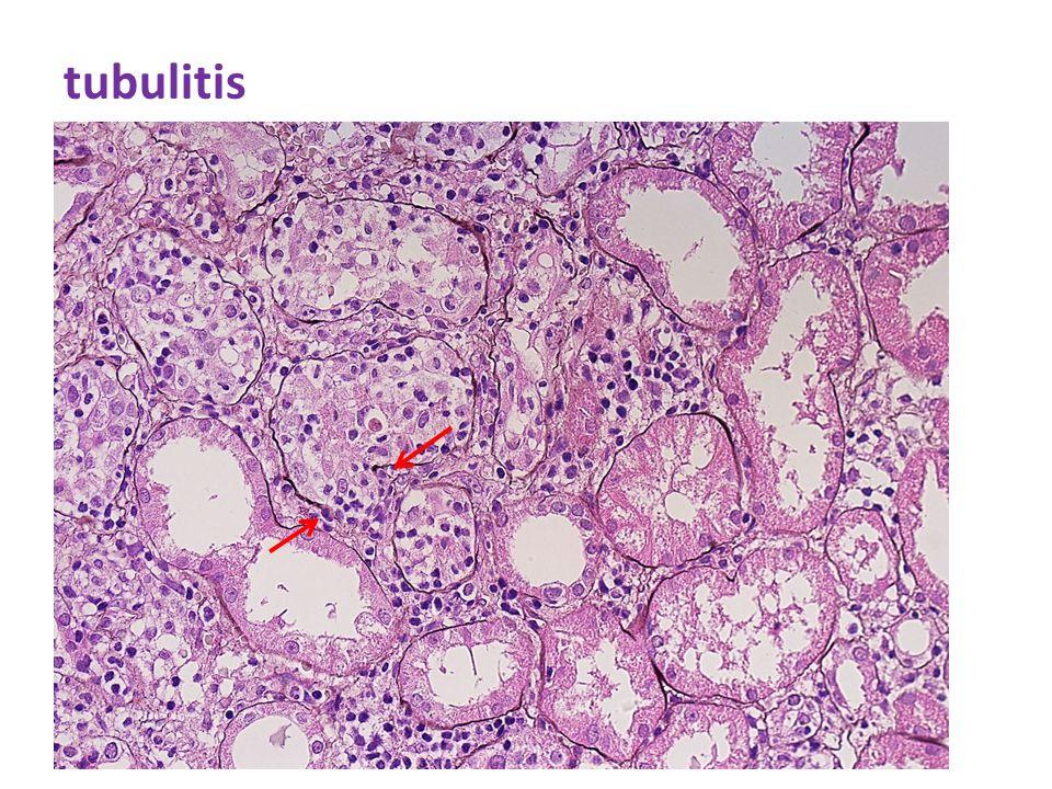 tubulitis