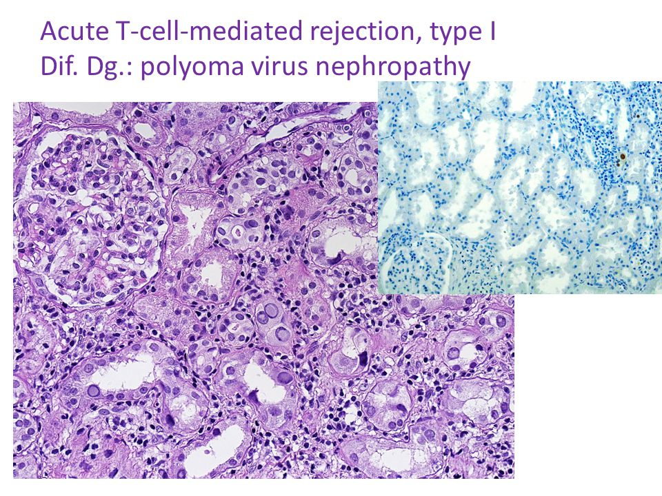 Acute T-cell-mediated rejection, type I Dif. Dg