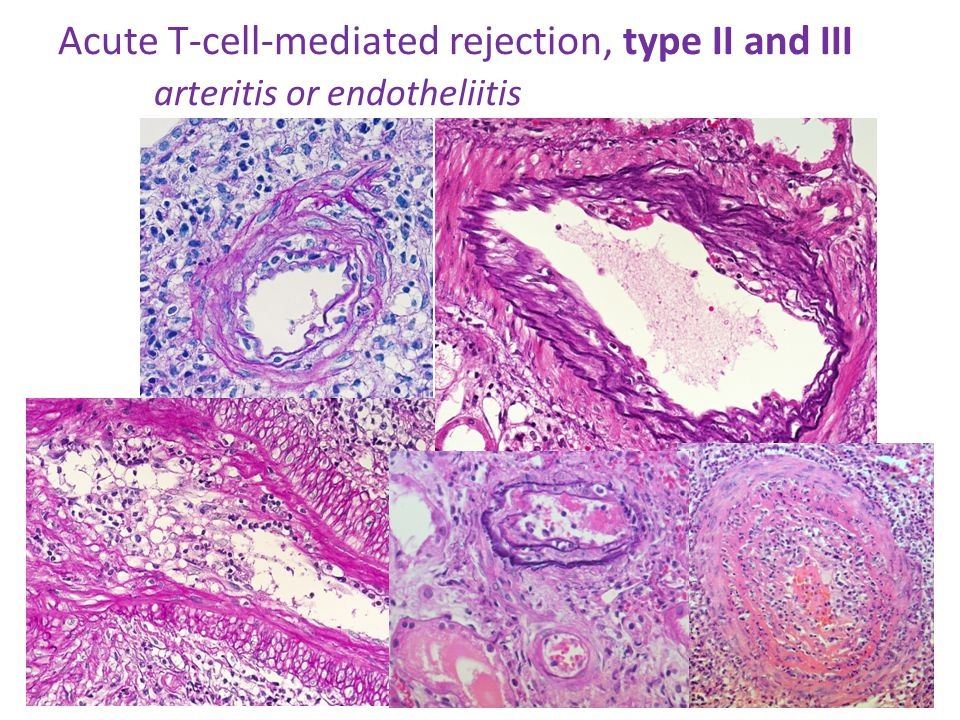 Acute T-cell-mediated rejection, type II and III arteritis or endotheliitis