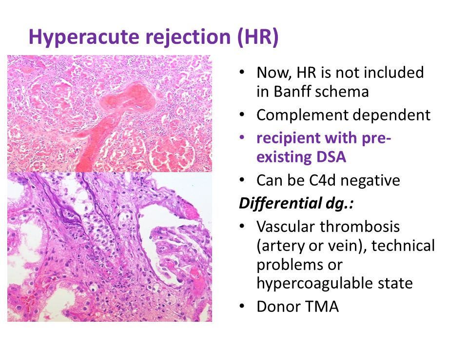 Hyperacute rejection (HR)