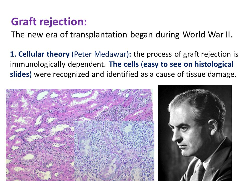 Graft rejection: The new era of transplantation began during World War II.
