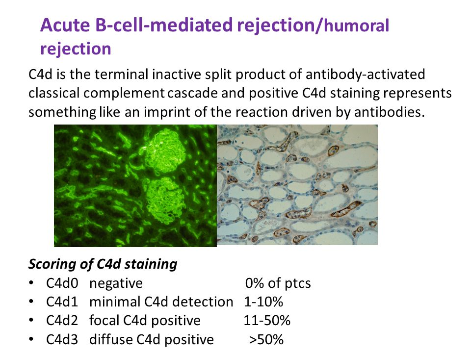 Acute B-cell-mediated rejection/humoral rejection