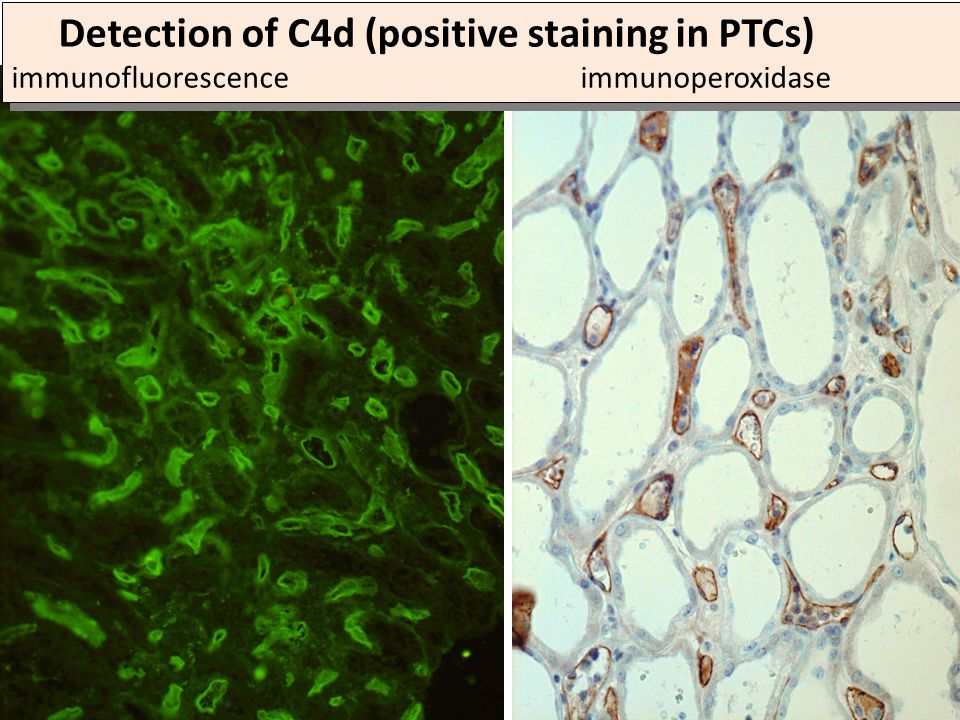 Detection of C4d (positive staining in PTCs) immunofluorescence immunoperoxidase
