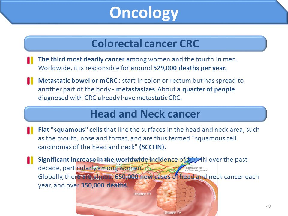 Oncology Colorectal cancer CRC Head and Neck cancer