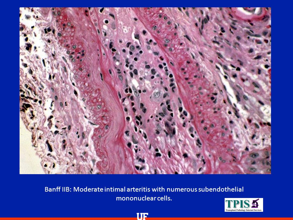 Banff IIB: Moderate intimal arteritis with numerous subendothelial mononuclear cells.