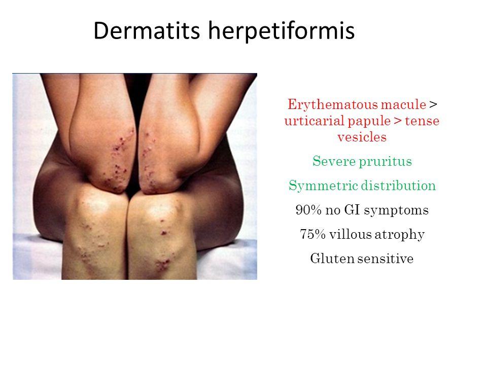 Dermatits herpetiformis