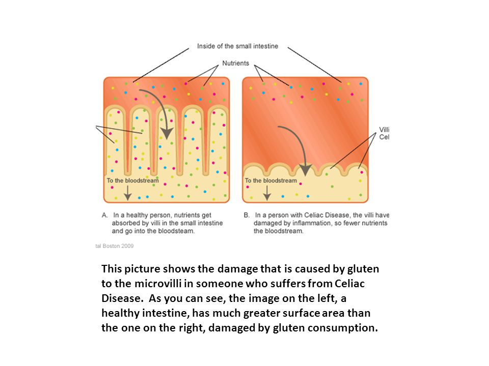 This picture shows the damage that is caused by gluten to the microvilli in someone who suffers from Celiac Disease.