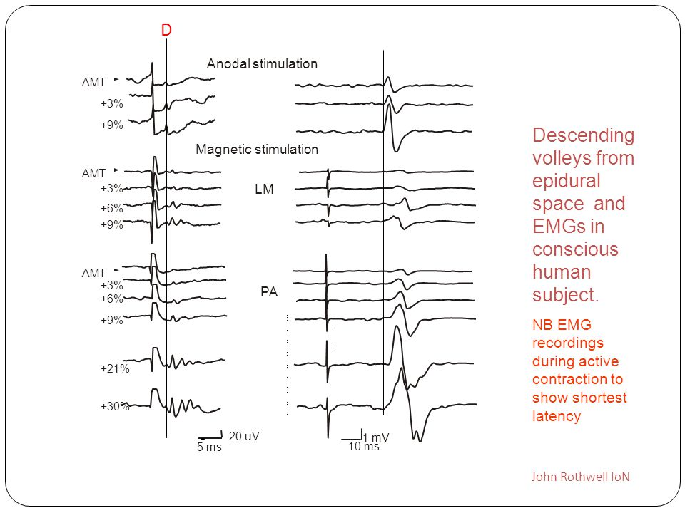 D Anodal stimulation. AMT. +3% +9% Descending volleys from epidural space and EMGs in conscious human subject.