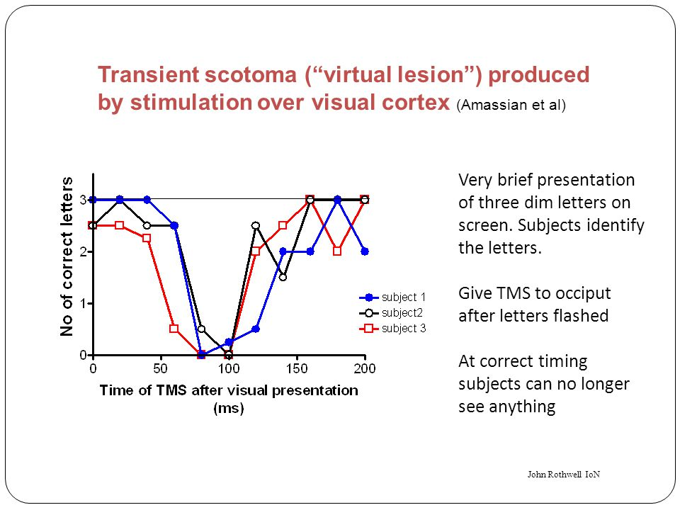 Transient scotoma ( virtual lesion ) produced by stimulation over visual cortex (Amassian et al)