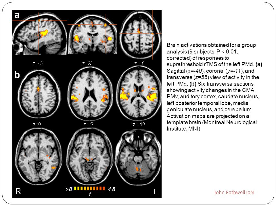 Brain activations obtained for a group analysis (9 subjects, P < 0