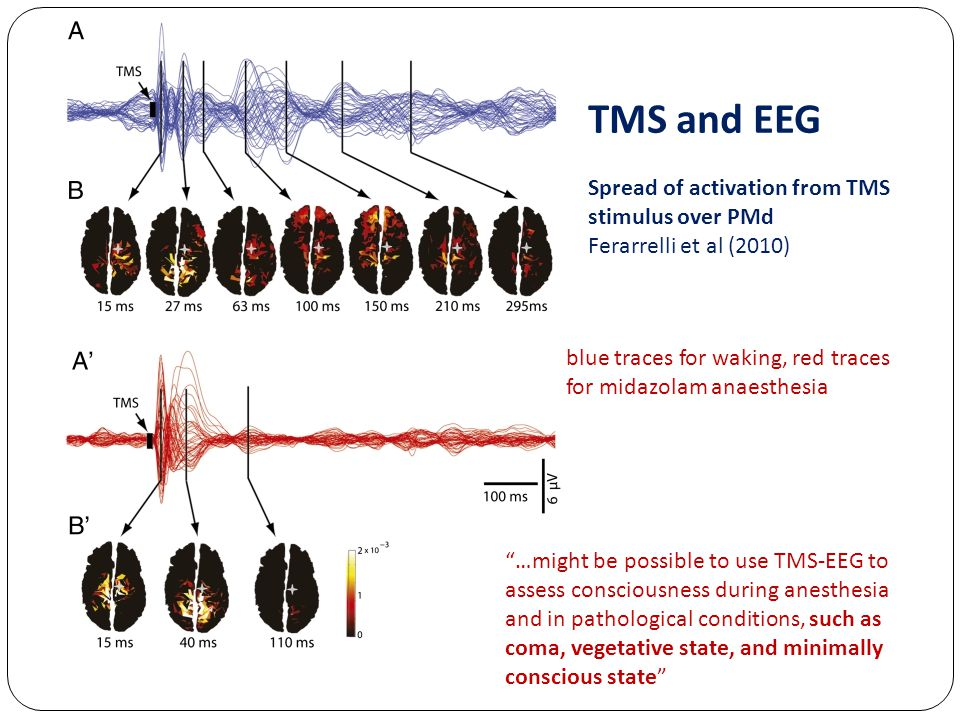 TMS and EEG Spread of activation from TMS stimulus over PMd