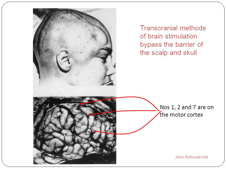 Transcranial methods of brain stimulation bypass the barrier of the scalp and skull