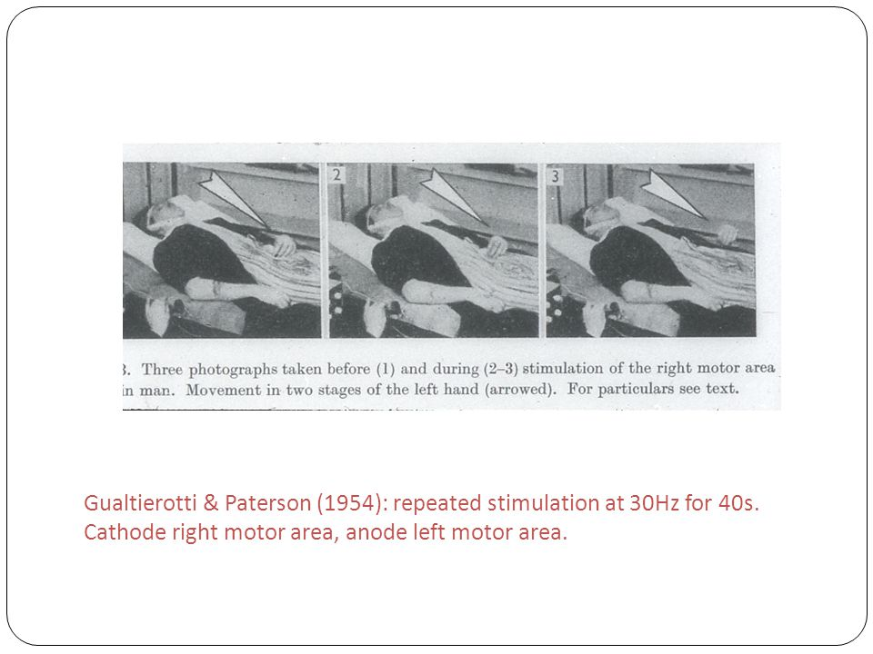 Gualtierotti & Paterson (1954): repeated stimulation at 30Hz for 40s