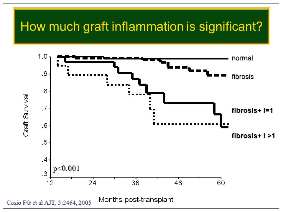 How much graft inflammation is significant