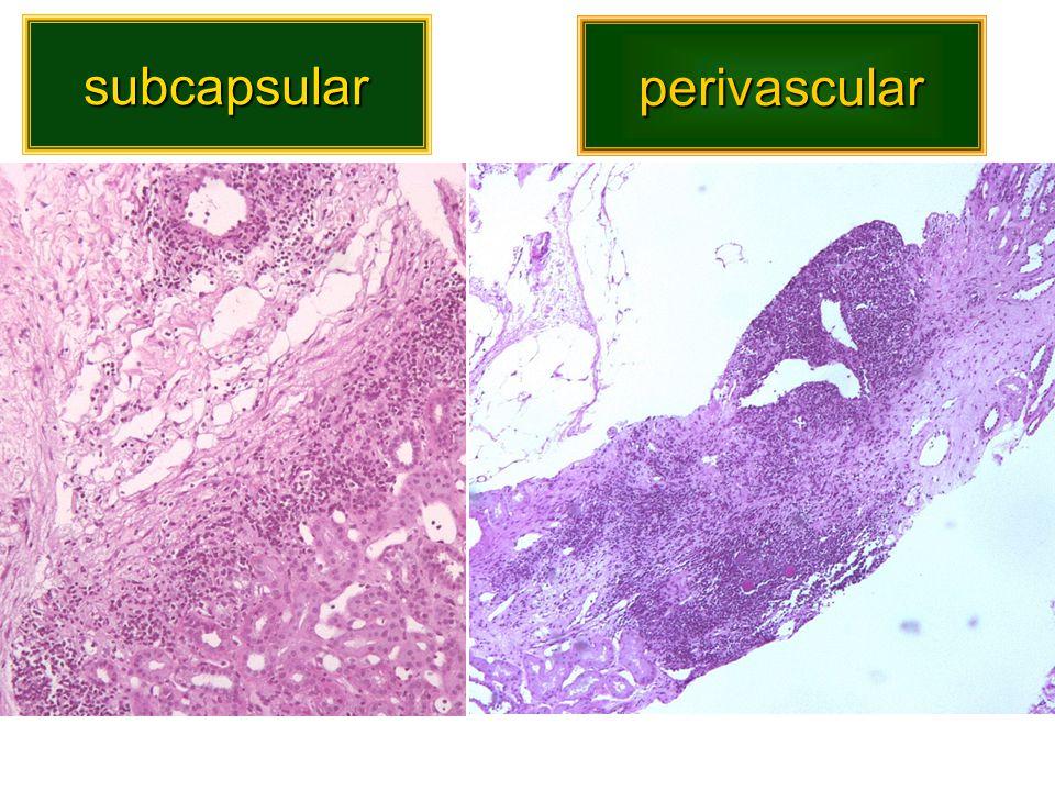 subcapsular perivascular