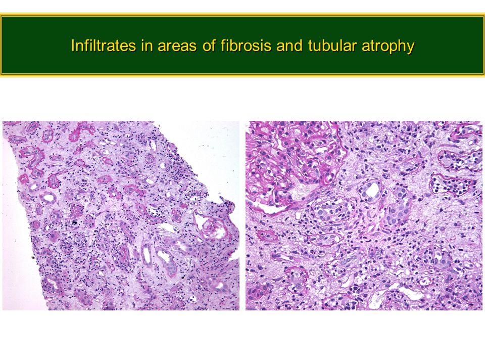 Infiltrates in areas of fibrosis and tubular atrophy