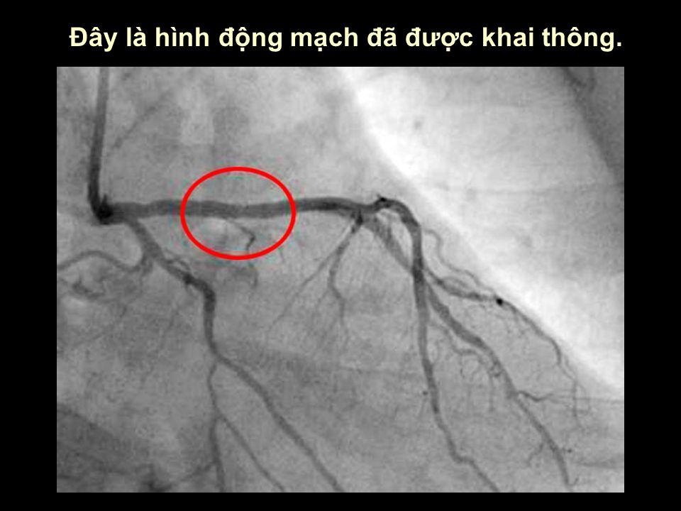 Đây là hình động mạch đã được khai thông.